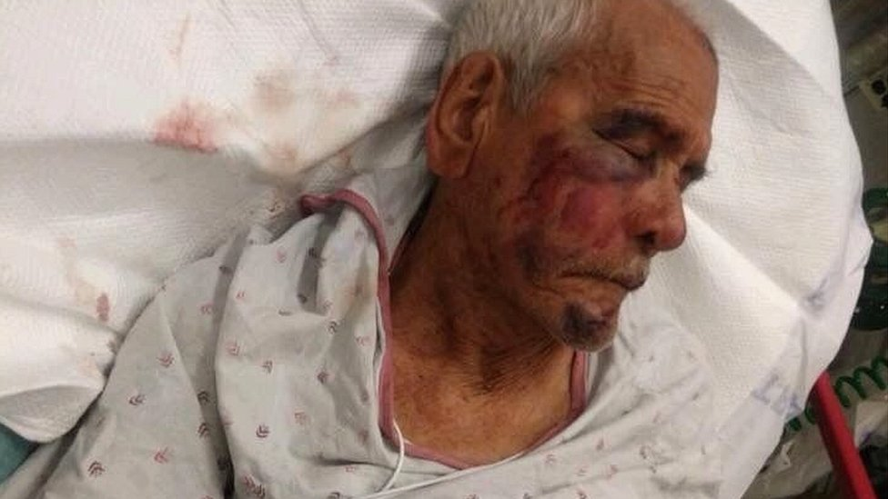 Photo of Mr Rodriguez in hospital bed