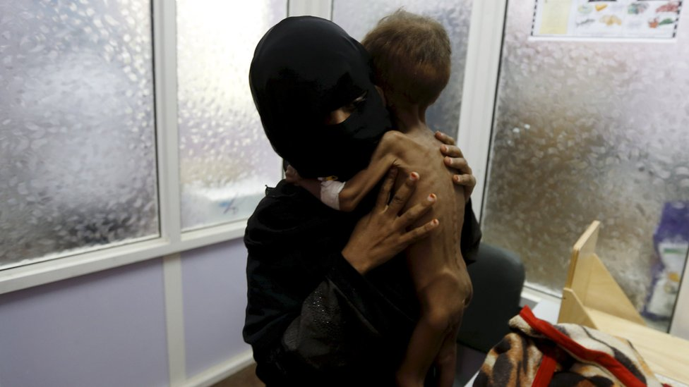 The mother of 21-month-old Majed Ayyash prepares him to be weighed at a malnutrition intensive care unit in Sanaa, Yemen (30 July 2015)