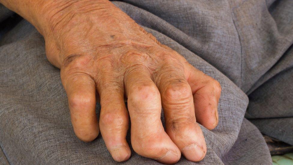 mano con dedos deformados.