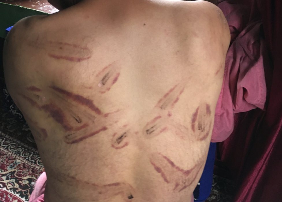 Signs of torture on the back of a man in Kashmir