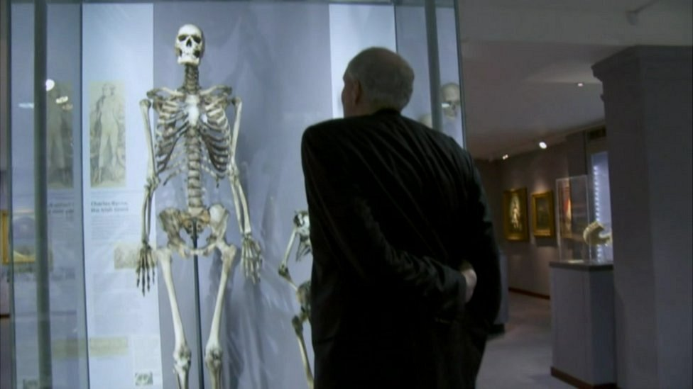 Brendan Holland and the skeleton of Charles Byrne