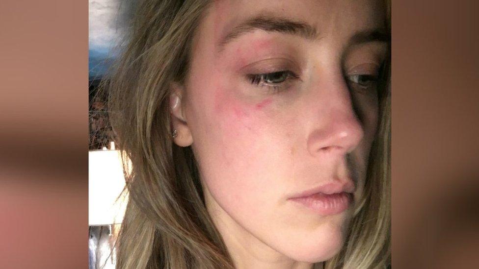 Amber Heard en una foto con presuntas lesiones