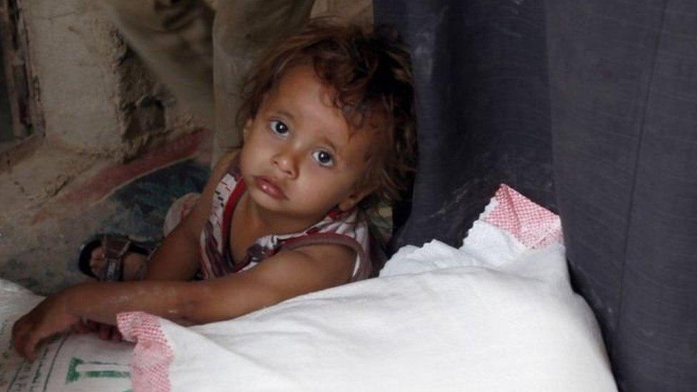صور الأطفال الذين يعانون سوء التغذية الحاد وتفشي وباء الكوليرا والتحذيرات من اقتراب مناطق باليمن من حافة المجاعة - كانت قد أدت الى تكثيف مساعي ايجاد حلٍ دبلوماسي للأزمة