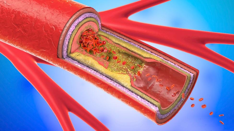 Arteria con acumulación de grasas y colesterol en su interior