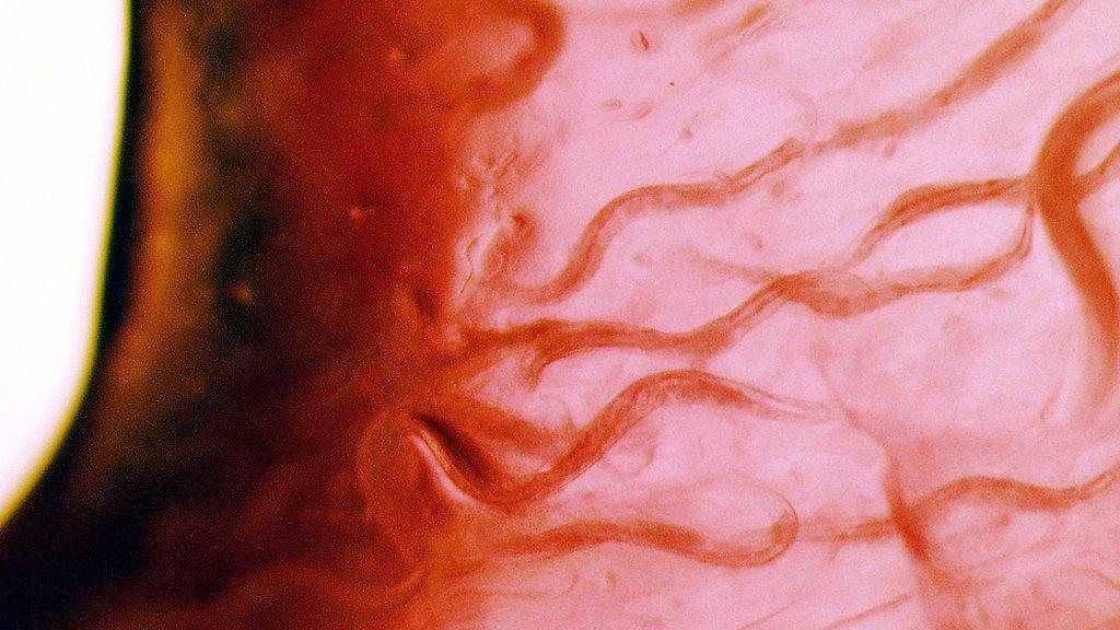 C. elegans que iban a bordo y que, a pesar de todo, sobrevivieron.