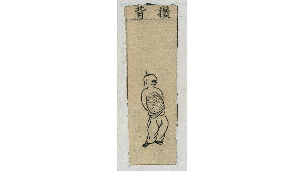 """Ilustración de pústulas """"juntas en la espalda"""" de """"El espejo de oro y calcedonia de enfermedades de la viruela"""" de China."""