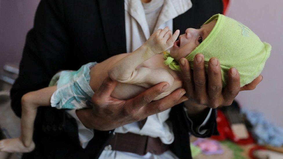 طفل يعاني من سوء التغذية