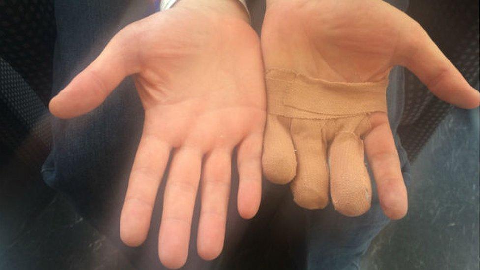 Jamie Clark's injured hand