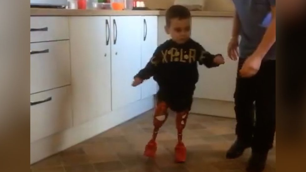 Child amputee Taylor Lewsley walks unaided for first time