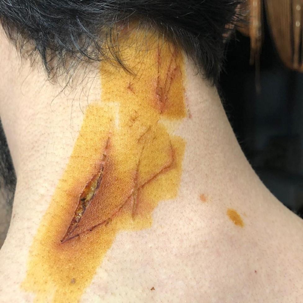 Heridas en el cuello de Tumso Abdurakhmanov causadas por el martillo.