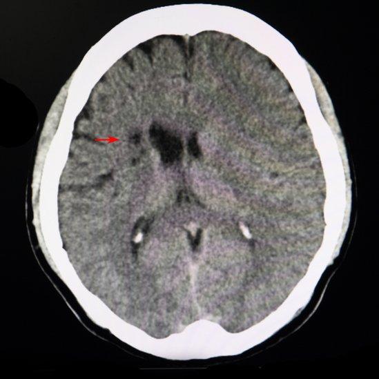 Una flecha roja señala un pequeño daño cerebral en una imagen de resonancia magnética (IRM)