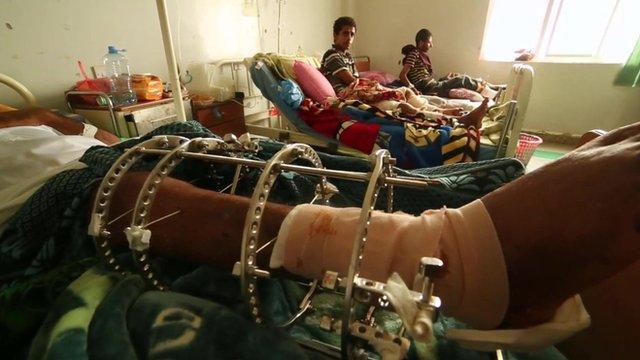 Patients in hospital in Yemen