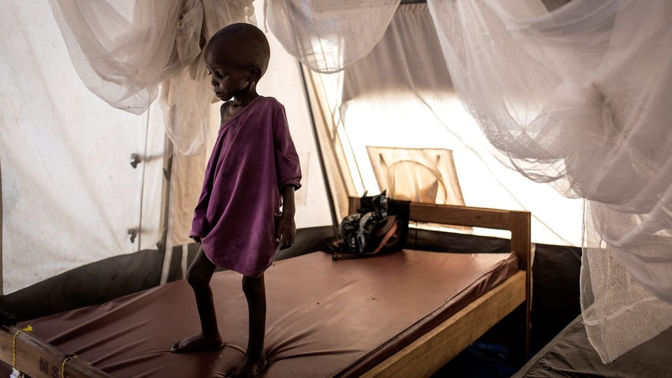 A malnourished child in the town of Tshikapa
