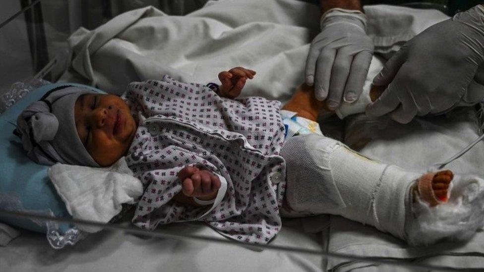 Emine, bir kez ameliyat edildi. Doktorlar vurulan bacağını kurtarmak için onu iki kez daha ameliyata alacak.