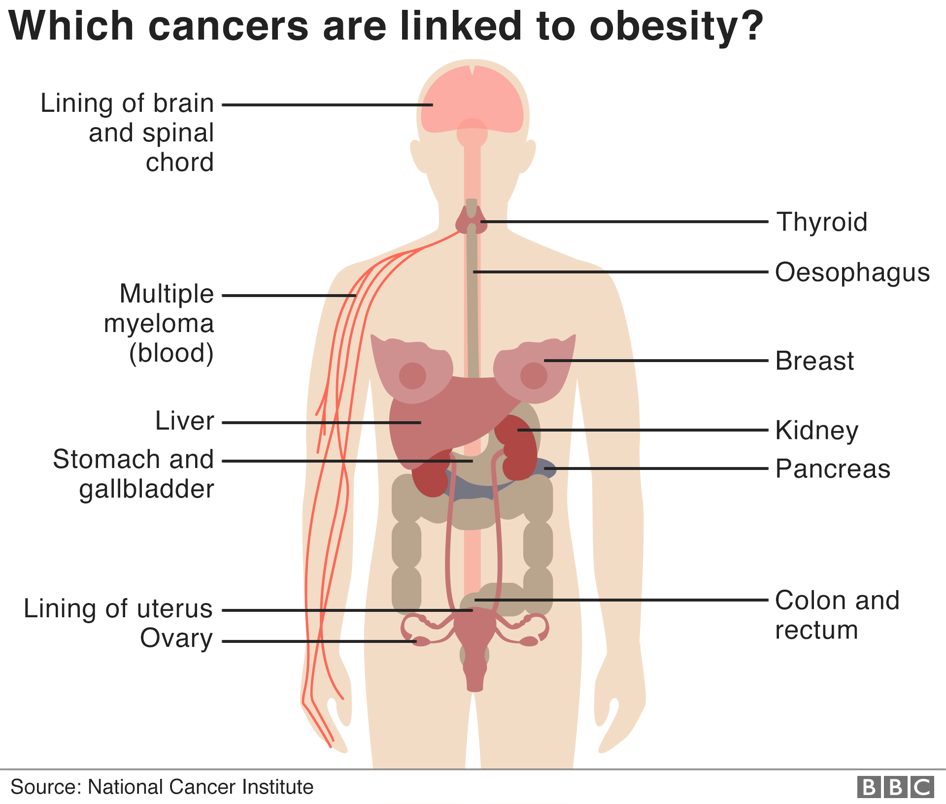 Infographic shows female human body and indicates parts of the body where obesity is linked to cancer