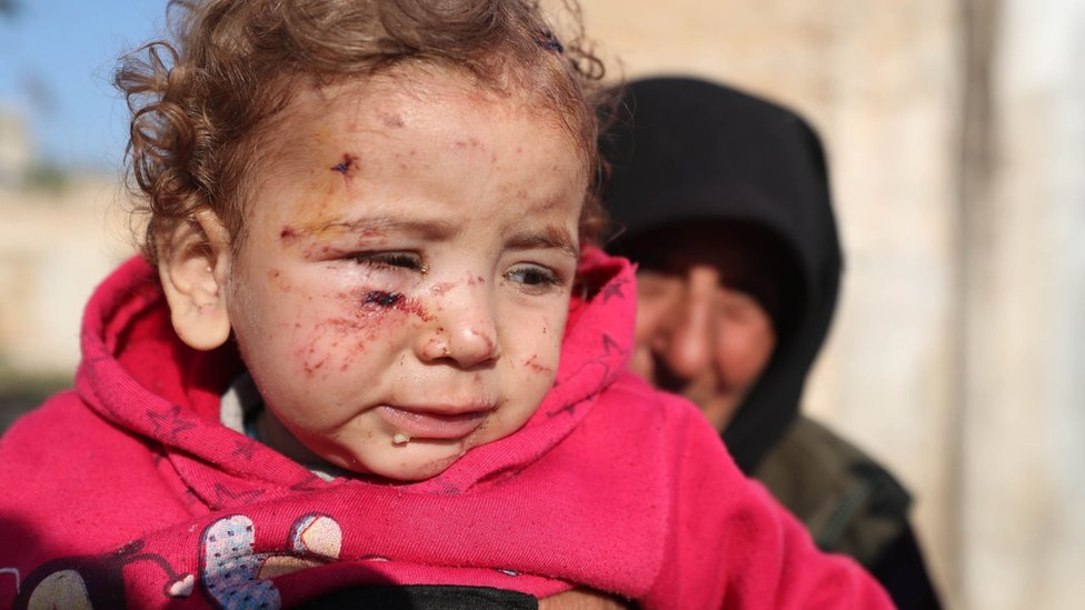 A woman holds up a child injured by a missile attack on a camp for displaced people in Idlib province, Syria (21 November 2019)