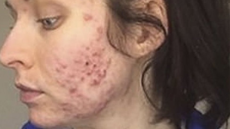 Overnight acne