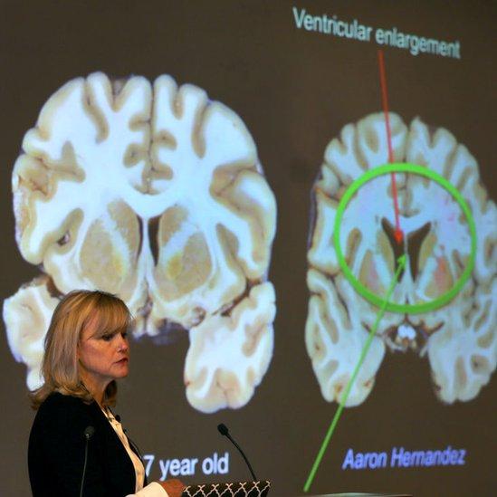 Ann McKee ante una presentación del cerebro de Aaron Hernandez