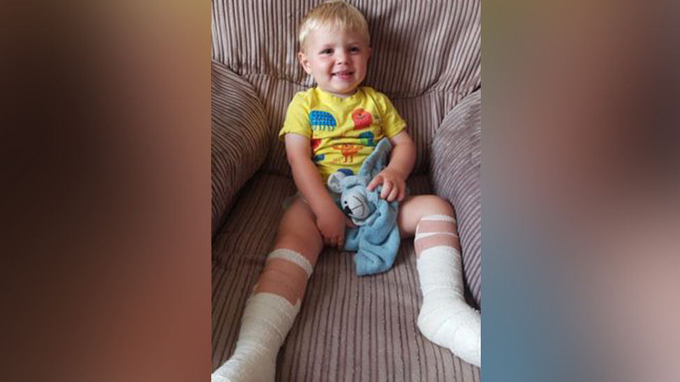 Harri with dressings on his feet and lower legs.