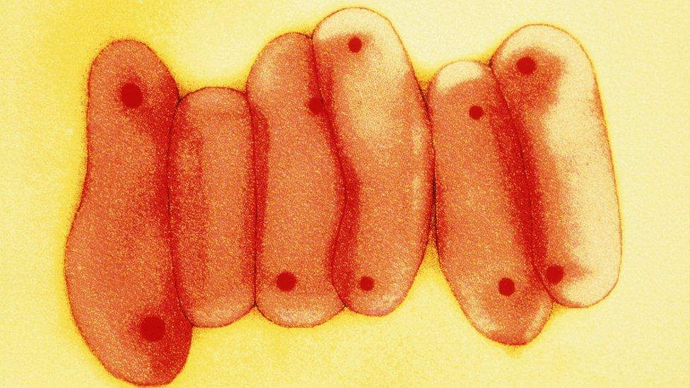 TB Mycobacterium tuberculosis