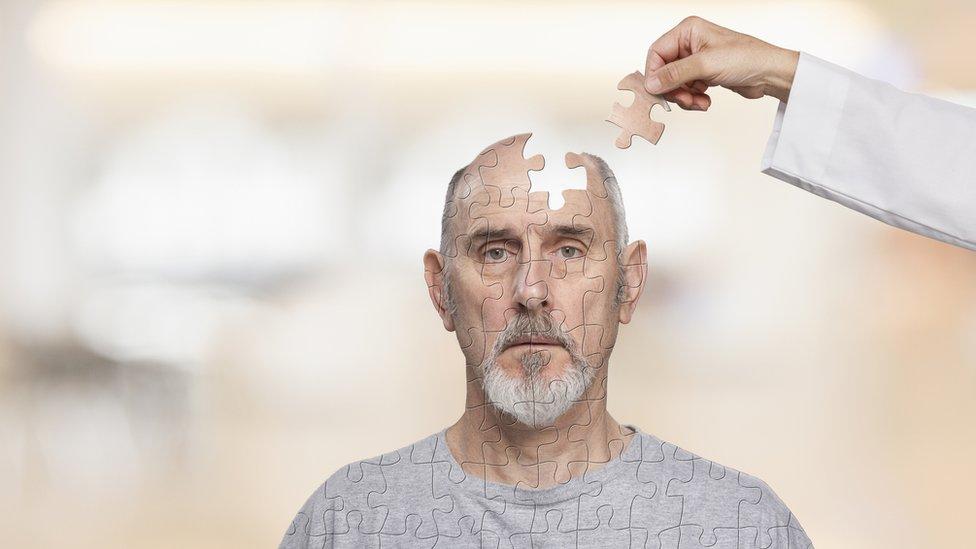 Hombre con figura de rompecabeza en el cerebro