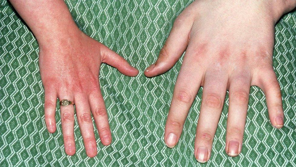 Mano normal (izquierda) al lado de una de alguien que sufre de acromegalia (derecha).