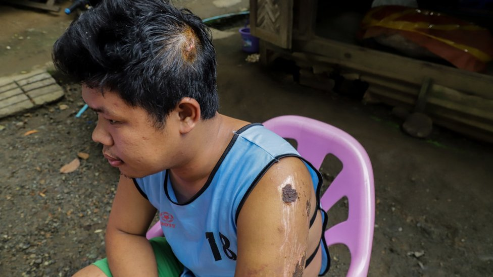 納彌(Yan Naing Myo)在塌方中受傷。