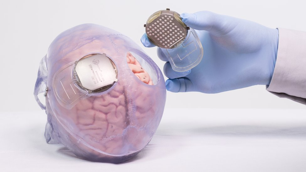 Sensor on the brain