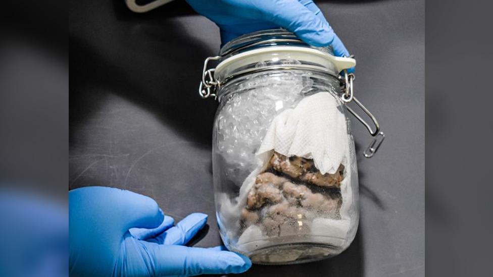 Mozak u tegli koji su pronašli američki carinici