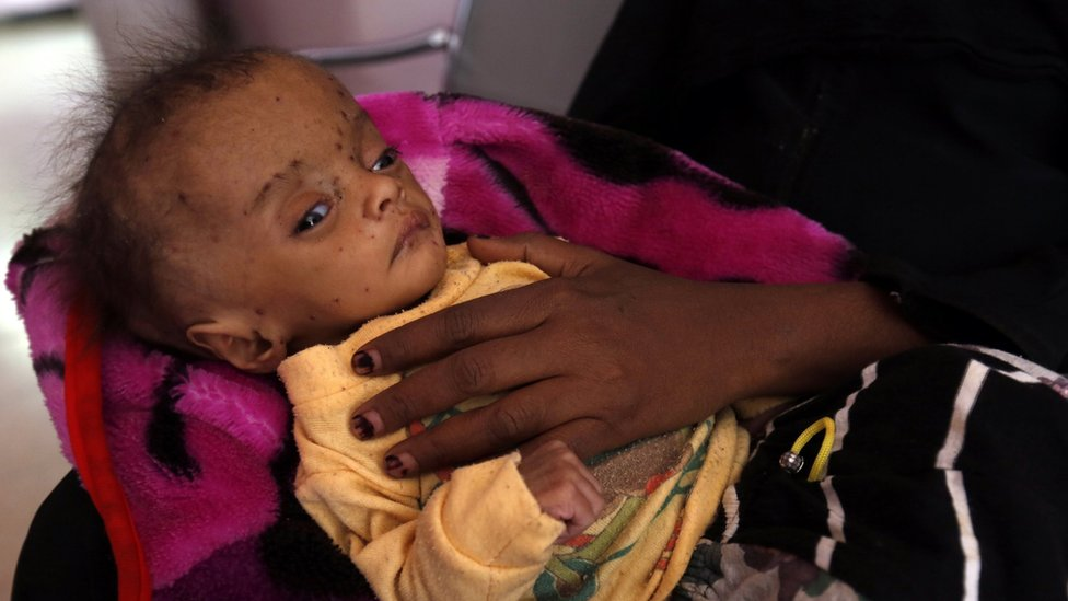 """A Yemeni woman holds her malnourished child receiving treatment amid worsening malnutrition at a hospital in Sana""""a, Yemen, 24 November 2017."""
