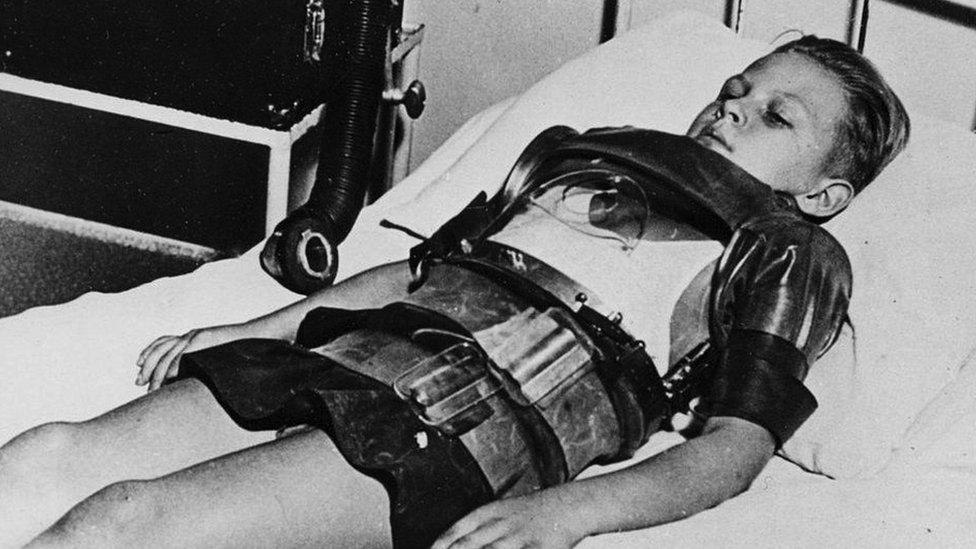 أدى شلل الأطفال لإصابة عدد كبير من الأطفال بالشلل