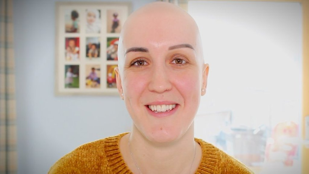 Netball player with alopecia 'bald and proud'