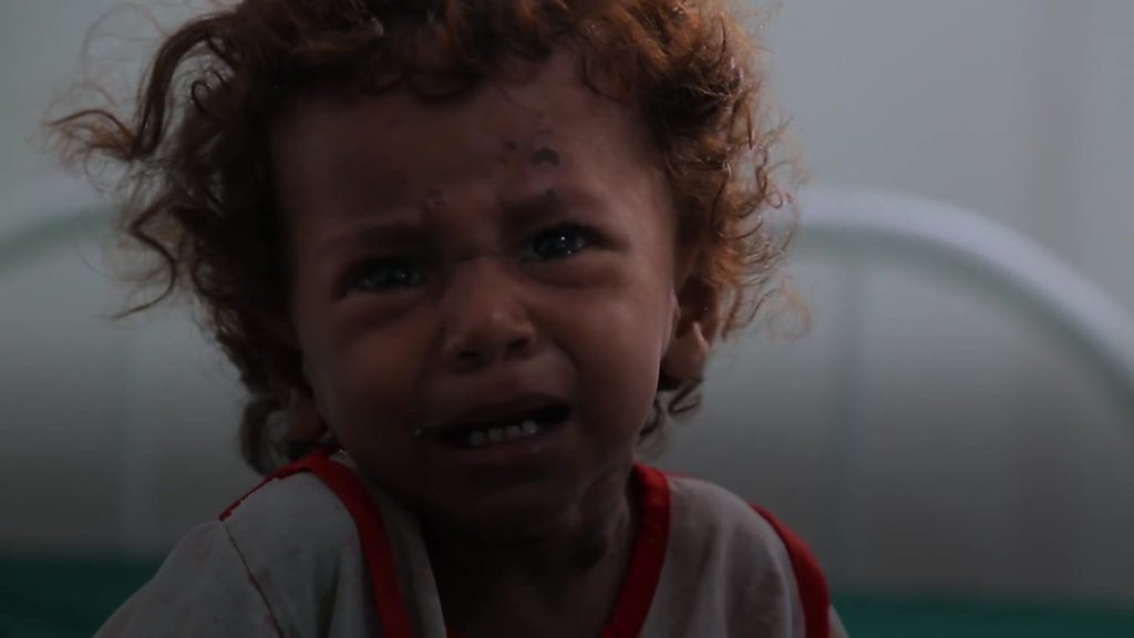 Yemen crisis: The battle for Hudaydah