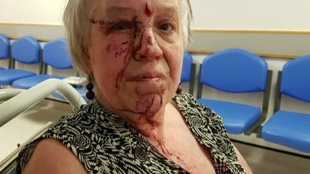 Woman punched by thieves for £11
