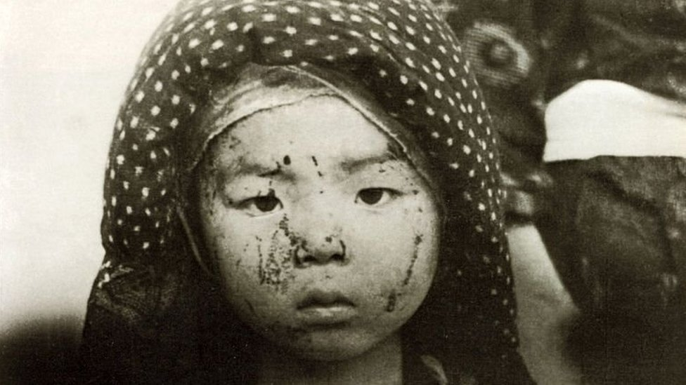 A child survivor of the Nagasaki bombing with facial injuries