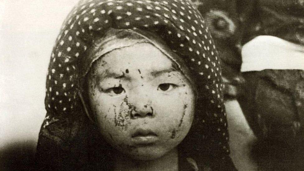 Niño sobreviviente de la bomba de Nagasaki con heridas en la cara.