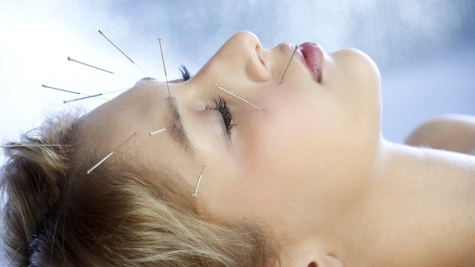 Mujer con agujas de acupuntura en la cara
