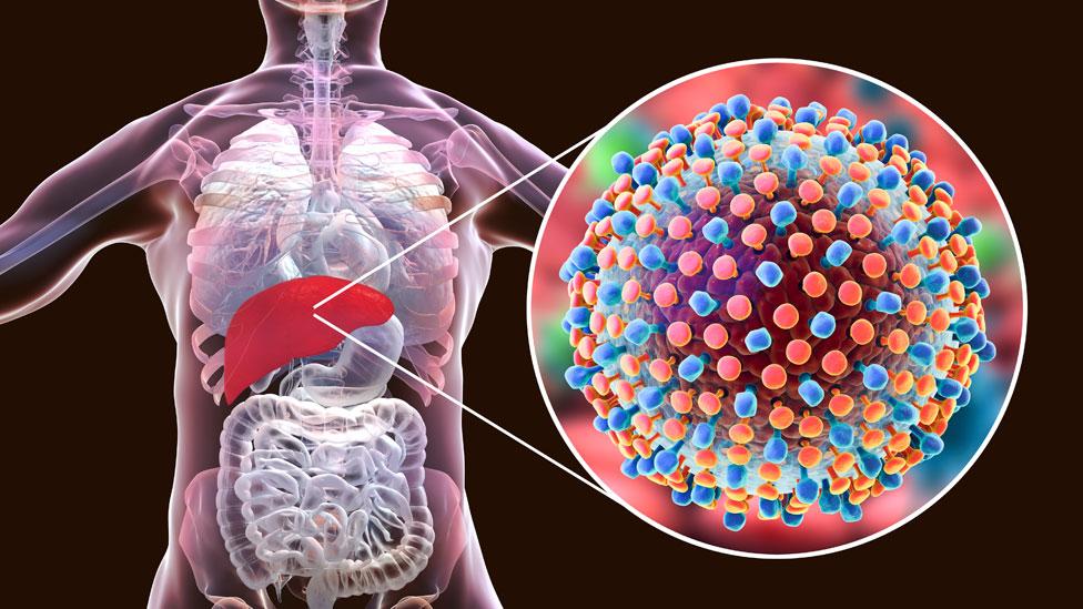 Imagen de infección con VHC