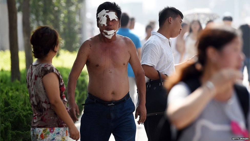 Man walking, wounded, in Tianjin (13 August 2015)