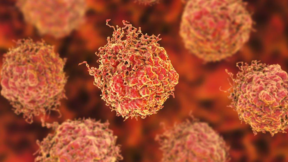 Prostate cancer diagnosis breakthrough hailed