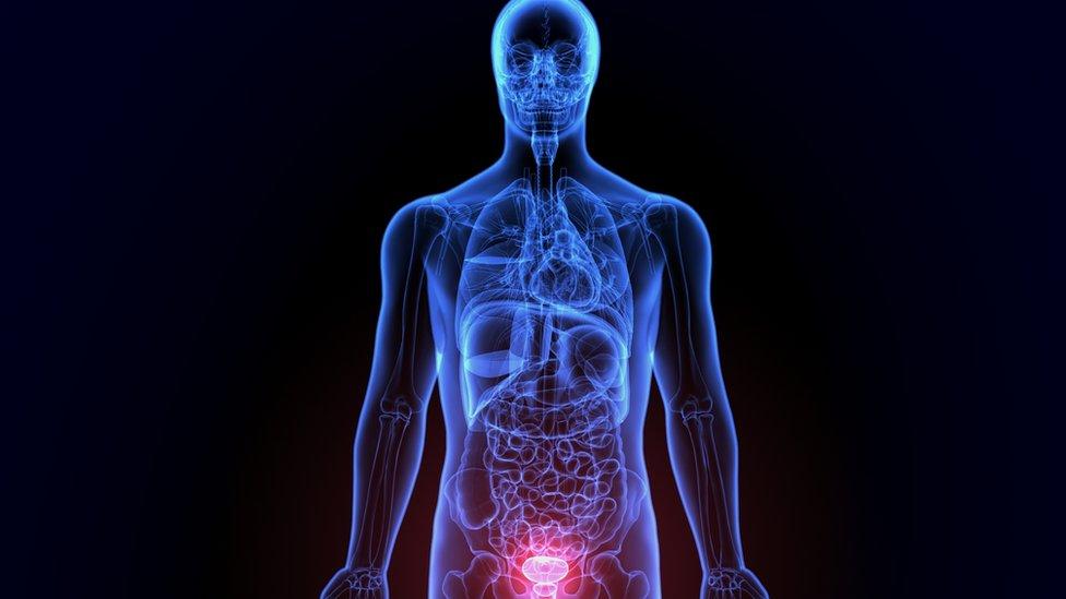 ¿qué causa el agrandamiento de la próstata reaction