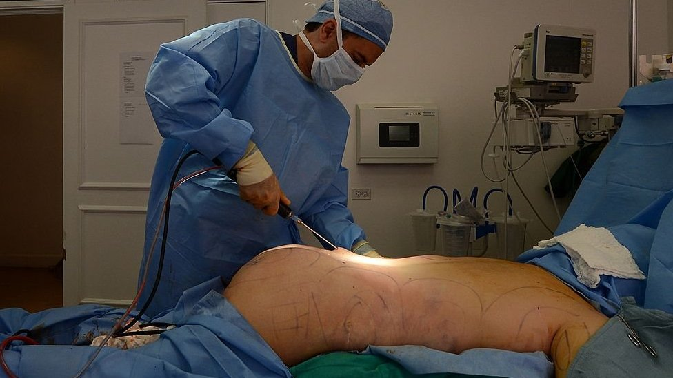 A surgeon performing butt enhancements