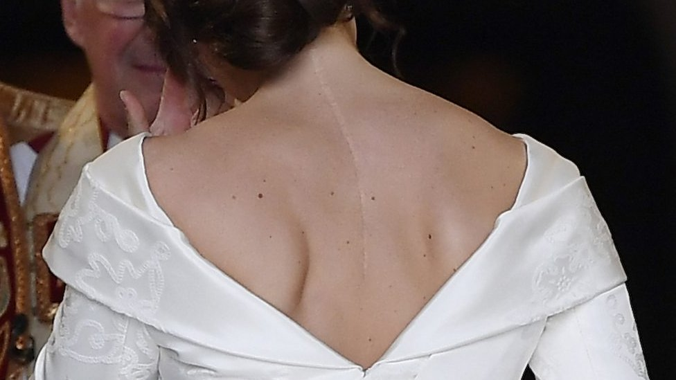 Princess Eugenie's dress showed off her scoliosis scar