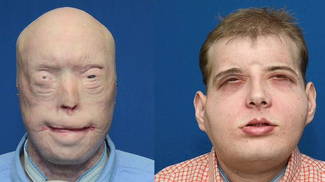 Patrick Hardiman before and after surgery