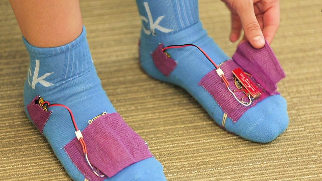 Smart SoPhy socks send data to your physiotherapist