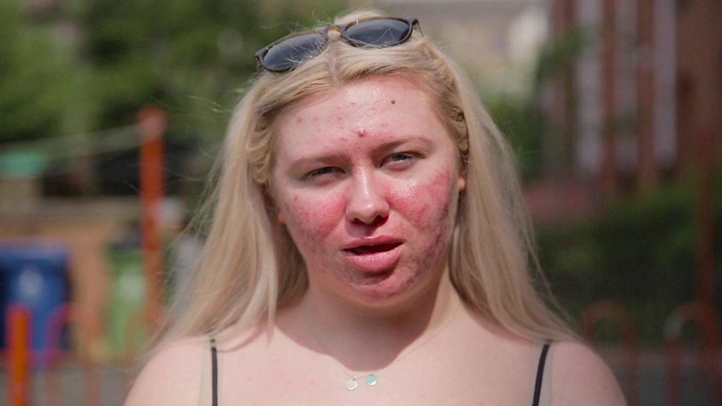 'Acne does not define me'
