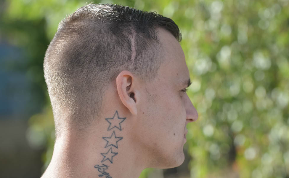 Byron Schofield's scar