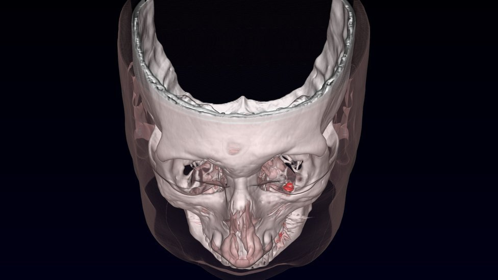 A false colour rendered CT scan after the first implantation in one eye