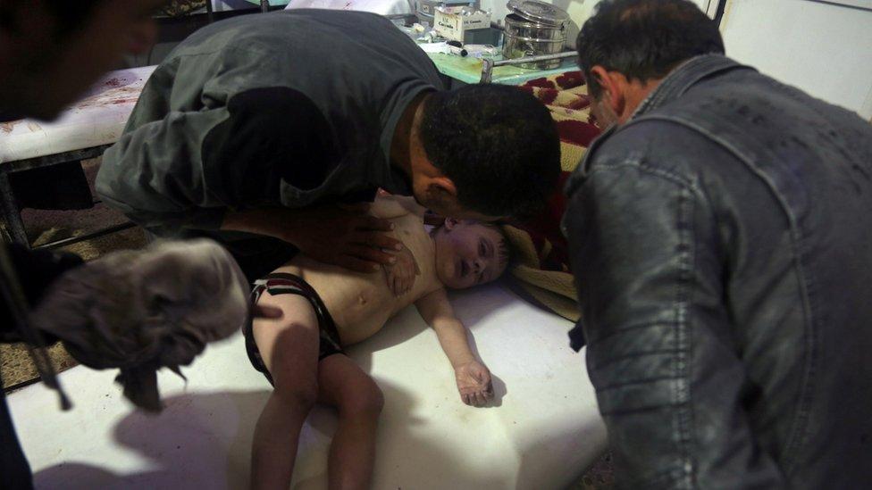 Un niño recibe tratamiento en un hospital de Douma, tras el supuesto ataque químico.