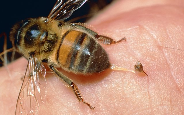 honeybee stinging a finger